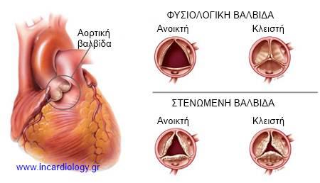 aortic-stenosis