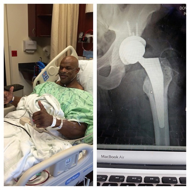 ronnie-coleman-2014-hip-surgery