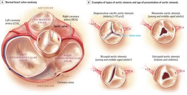 stenosi-aortikis
