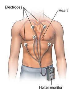 Front view male figure torso with holter monitor and ekg/heart rhythm inset; SOURCE: body3D.psd; cardio_holter-monitor_proc_1_layers.psd
